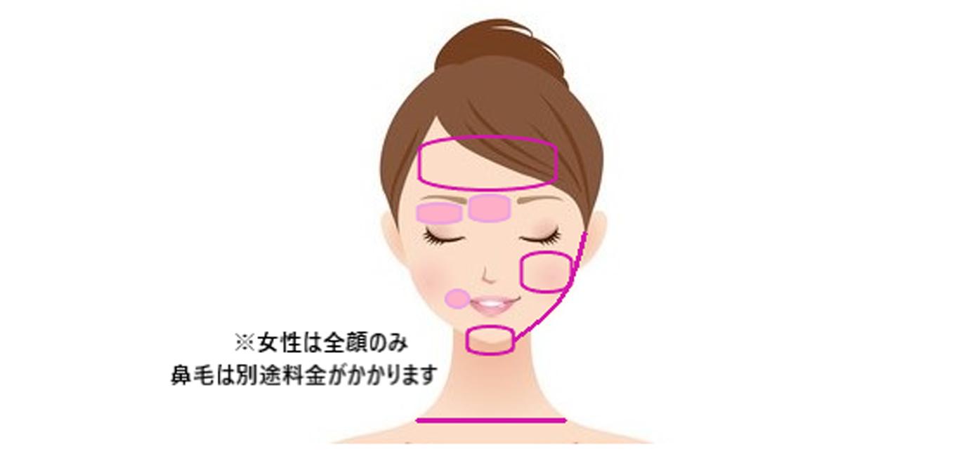 名古屋で医療脱毛なら名駅すぐの名古屋駅健診クリニック美容皮膚科|医療脱毛