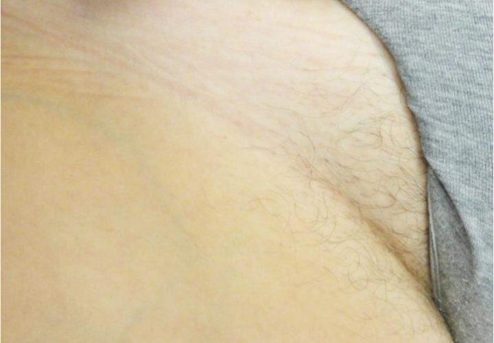 名古屋で医療脱毛なら名駅すぐの名古屋駅健診クリニック美容皮膚科|症例写真