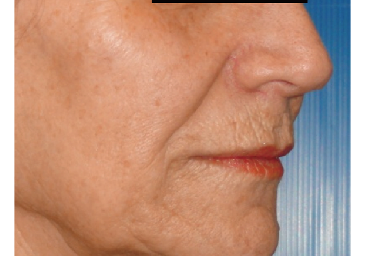 名古屋で医療脱毛なら名駅すぐの名古屋駅健診クリニック美容皮膚科|リフトアップ症例写真